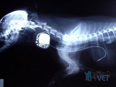 Rentgenový snímek pacienta s kardiostimulátorem po operaci